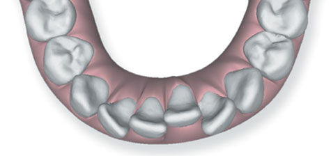 695_crowding What is Invisalign®?