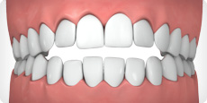 695_open_bite What is Invisalign®?