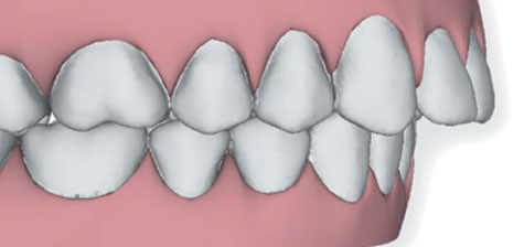 695_overjet What is Invisalign®?