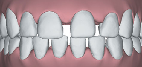 695_spacing What is Invisalign®?